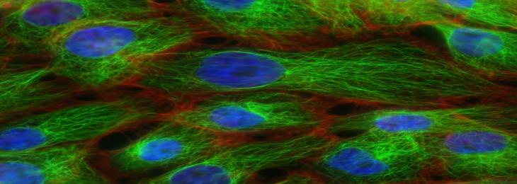 Study Finds Protein that Prevents the Entry of Cancer Cells into Bloodstreams