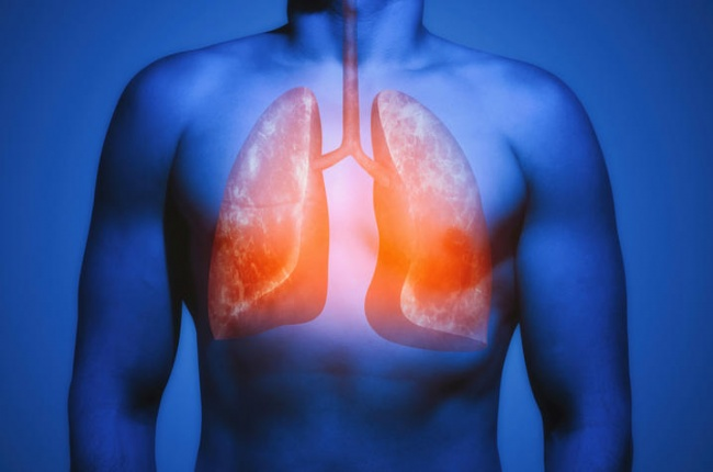 Researchers Identify New Way to Detect Lung Disease