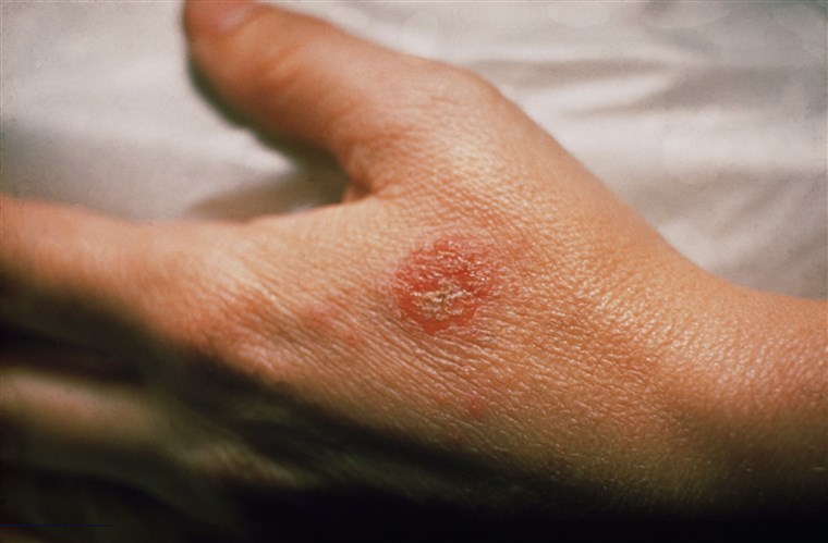 Researchers Sheds New Light on Eczema